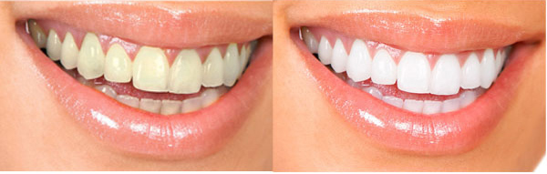 dentifricio-tibet2