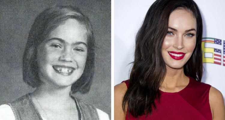 Megan Fox antes e depois