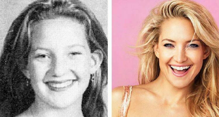 Kate Hudson antes e depois
