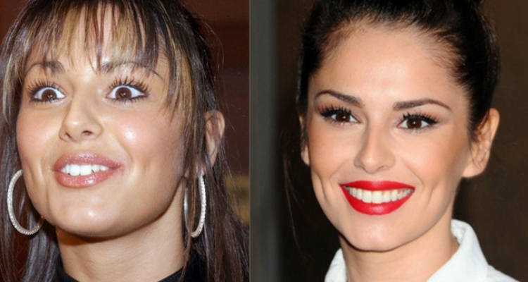 Cheryl Cole dentes