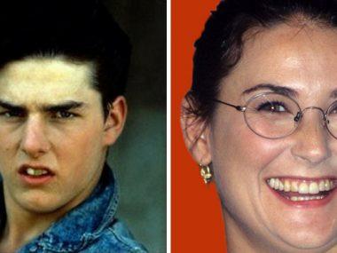 dentes dos famosos brasileiros antes e depois