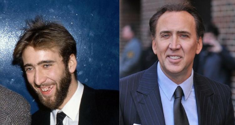 Nicolas Cage dentes
