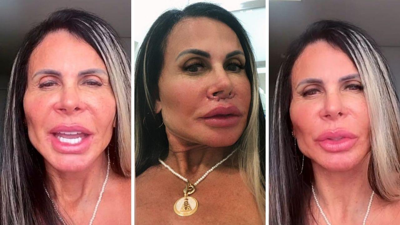 Gretchen harmonização facial